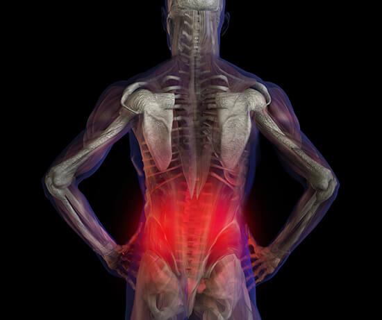 derékfájás kezelése és a fájdalom területe