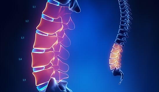 lumbágó és derékfájás jelentkezése a gerinc alsó szakaszán
